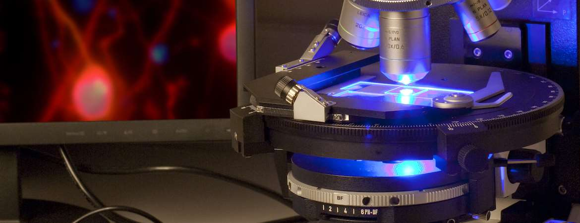 An optical microscope on the left with a laser beam passing through the stage and a monitor with fluorescent image on the right.